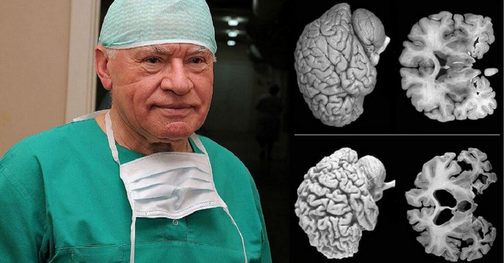 Neurochirurdzy